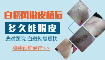 白癜风植皮 白斑皮肤一步一步变化的图片