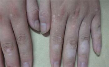 手指上出了好多小白点点是什么