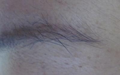 淡白色白斑长在眉毛旁边是什么