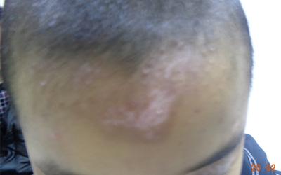 婴儿额头一大块白色斑点是什么