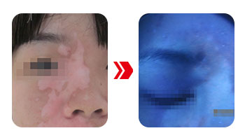 伍德灯检查白斑对眼睛有害吗