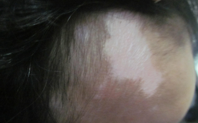 额头上有块皮肤突然变白怎么回事