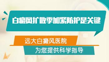 女性手上和脸上的白癜风ZUI近有发展