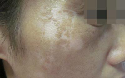 脸部皮肤磕了一下脱皮后变白了怎么办