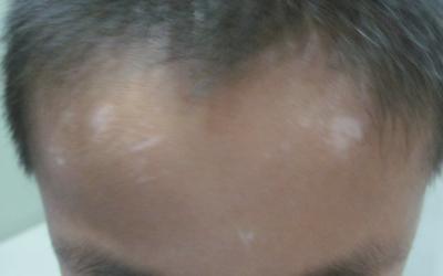 头皮有白斑是什么原因 白斑怎么治
