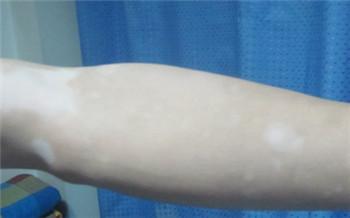 手臂白斑图片 白斑是不是白癜风怎么看