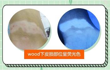 wood镜下白斑是蓝白色的是白癜风吗