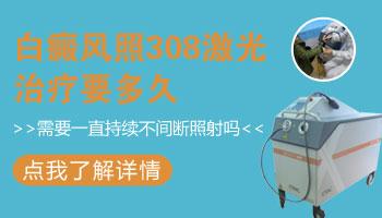 进口308激光设备图片 光疗能治好白癜风吗