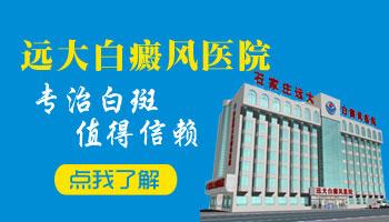 邯郸看白癜风的医院有哪些