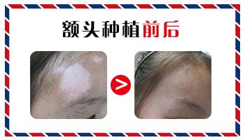 儿童面部白癜风植皮后2个月后图片
