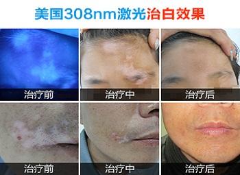 脸部白斑照308激光恢复过程图