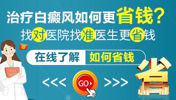 邯郸医院治疗白癜风贵不贵