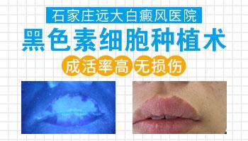 白癜风植皮的皮肤一步一步变化图片