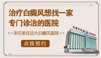 沧州治白癜风的医院网上预约挂号