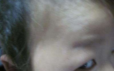 三岁宝宝面部有白斑图片