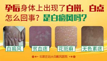 如何区别白癜风和炎症后皮肤色素减退