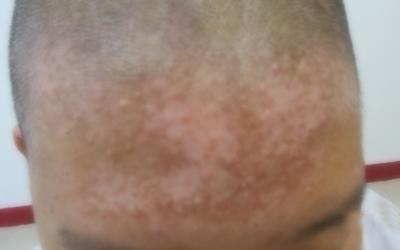 头皮上出现白斑的图片