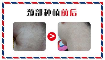 黑色素移植治疗白斑1周后图片