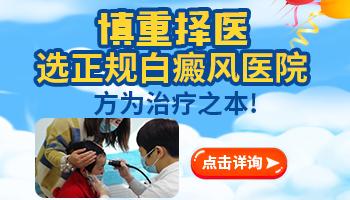 在邯郸看白斑看得比较好的医院
