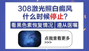 白癜风308激光照到什么程度就不用照了