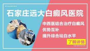 石家庄正规三甲白癜风医院