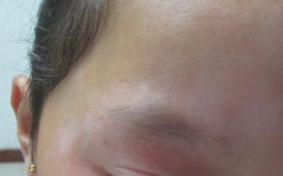 眉毛长白癜风初期症状图片