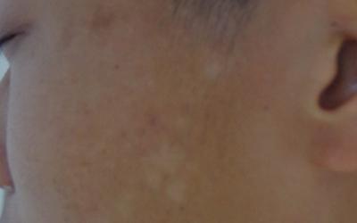 额头还有左侧脸颊有浅白色白块是什么