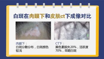 白斑是白癜风吗 皮肤CT报告是什么意思