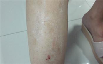 腿上长白斑有点光滑是什么