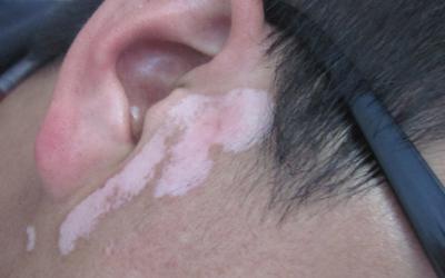 耳朵根皮肤白怎么回事