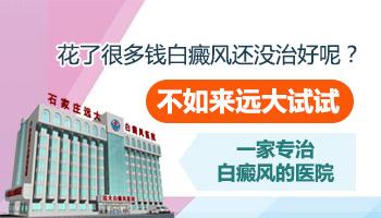 沧州治疗白癜风的医院哪一家好