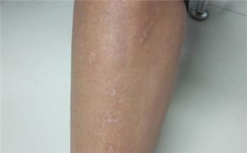 大腿根部有白色斑点一年多了是什么原因