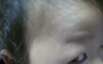 孩子12岁了脸上有白斑怎么回事