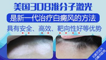 脖子白癜风照308激光对甲状腺有危害吗