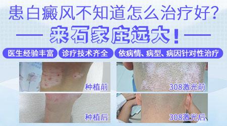 手掌白癜风治疗1个多月没有效果 白斑能治好吗