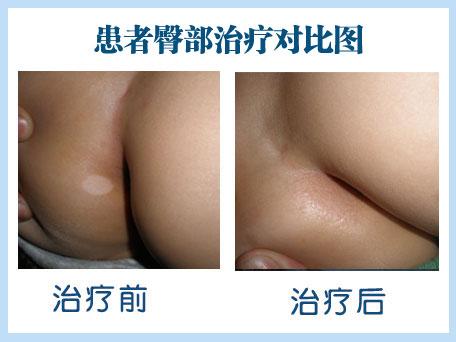 肛周白斑早期图片大全