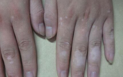 手上皮肤有白点图片 白点是什么病