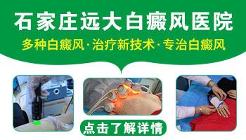 沧州白癜风医院技术