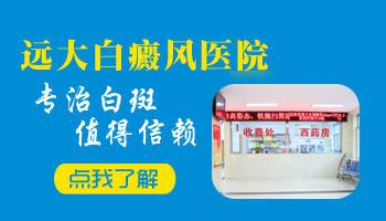 邢台县医院可以治疗白癜风吗