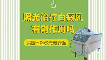 308激光治疗白癜风的副作用
