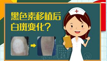 手指上有白癜风做植皮手术需要多长时间