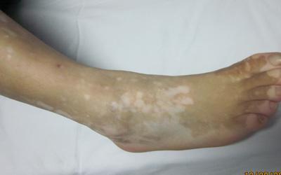 男性脚上长了很多白斑点什么原因