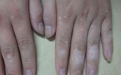 手指缝隙一块白一块白的是什么病
