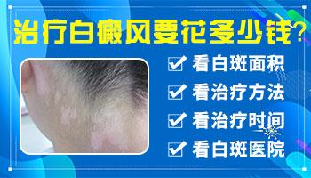 河北邯郸治疗白癜风要花多少钱