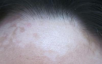额头和发际线的皮肤长白斑怎么回事