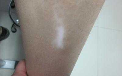 膝盖处有一不规则形状的白斑是什么