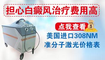 308准分子激光治疗白癜风一次多少钱