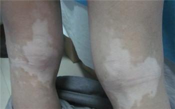 双腿长了很多绿豆大小的白斑点