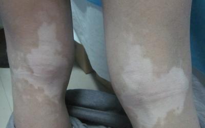 膝盖上的白癜风图片
