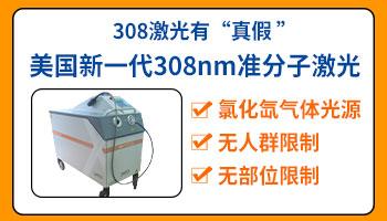 科诺的308准分子激光治疗白癜风怎么样